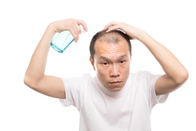 なぜ多くの男性は育毛剤を選ぶのか?